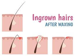 How To Prevent Folliculitis Occurring After Waxing Guys